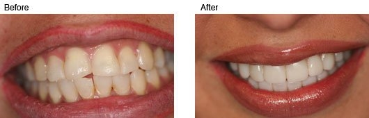 Coral Springs Cosmetic Dentistry Before and After Photo 6