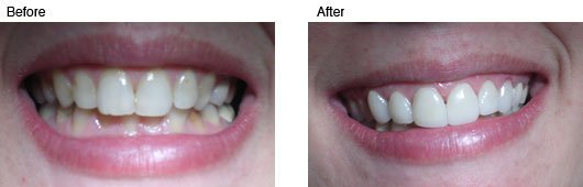 Coral Springs Cosmetic Dentistry Before and After Photo 5