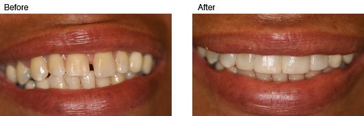 Coral Springs Cosmetic Dentistry Before and After Photo 4
