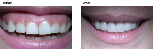 Coral Springs Cosmetic Dentistry Before and After Photo 3