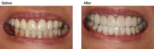 Coral Springs Cosmetic Dentistry Before and After Photo 2