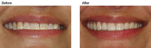 Coral Springs Cosmetic Dentistry Before and After Photo 1